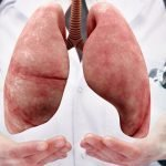 The Importance of Healthy Lungs - Top Ways to Protect Them